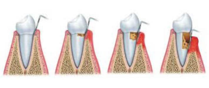 parodontologija 1a