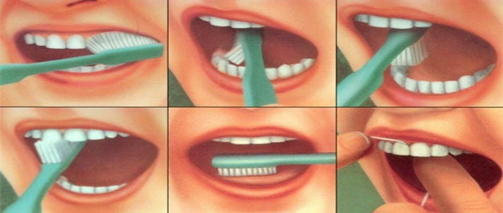 parodontologija 3a